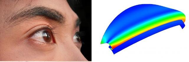 Simulation of the double-eyelid (right) and a real one (left).